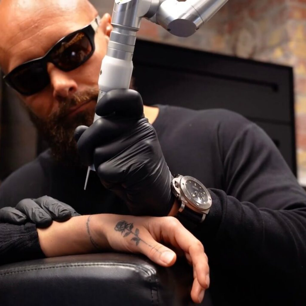 Rewind-fjernelse-af-tatovering